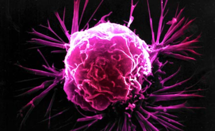 Breast cancer cell featured image